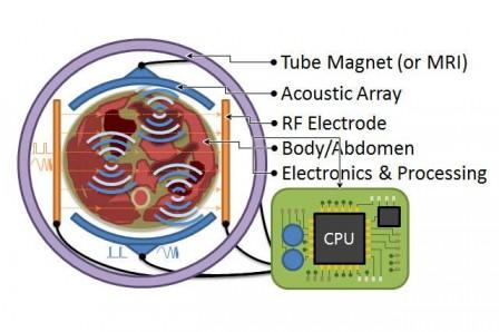 Principe de la Tomographie Magnéto-Acoustique